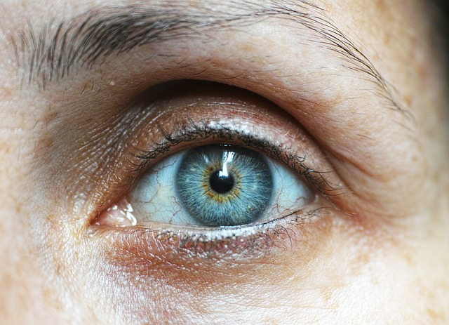 Eye-Lifts vs Wrinkle Creams?